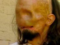 Мужчина очнулся спустя 3 месяца. Когда он дотронулся до своего лица, то задрожал от ужаса!
