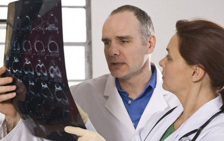 Пять случаев, когда не стоит верить словам «у вас рак»