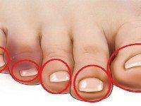 Первый признак болезни сердца: для начала коснись пальцев на ногах…