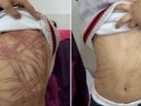 Учительница обнаружила на теле 9-летнего ребенка ужасающие шрамы. Но скоро она узнала, кто нанес ему эти увечья!