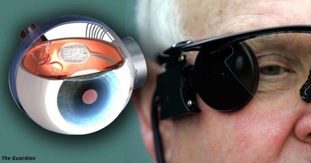 Первый в мире бионический глаз вернет зрение слепым людям!