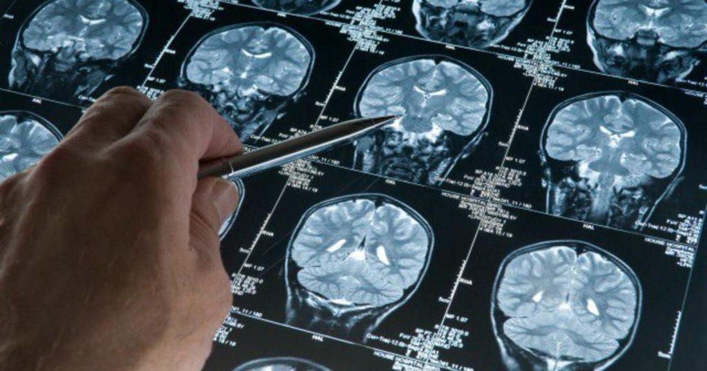 Если вам дороги ваши мозги, вы просто обязаны иногда поститься!