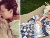 Синдром Cпящей Красавицы: эта девушка почти не просыпается по полгода