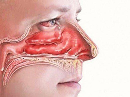 С помощью этого трюка ты прочистишь заложенный нос за 2 минуты!