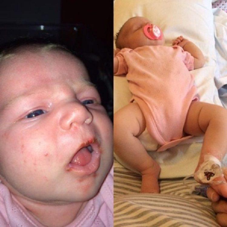 Этот младенец был на волосок от гибели. Причиной тому был безобидный поцелуй!