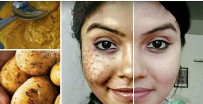 Ей понадобилось 7 дней и немного картошки — идеальная кожа и ни копейки за химию!