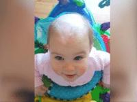 Присмотревшись к голове этого младенца, врачи побледнели. Такого они еще не видели!