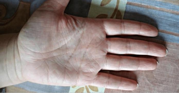 Первые симптомы рака проявляются на руках! Худшее, что можно сделать, — проигнорировать их…