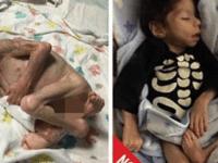 В 7 лет он весил 3 кг, но эта семья не побоялась его усыновить: их фото сейчас