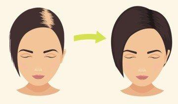 Пищевая сода способствует росту волос в кратчайшие сроки!