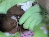 На ночь мать прикрыла недоношенного сыночка перчаткой. С утра медсестры не поверили своим глазам!