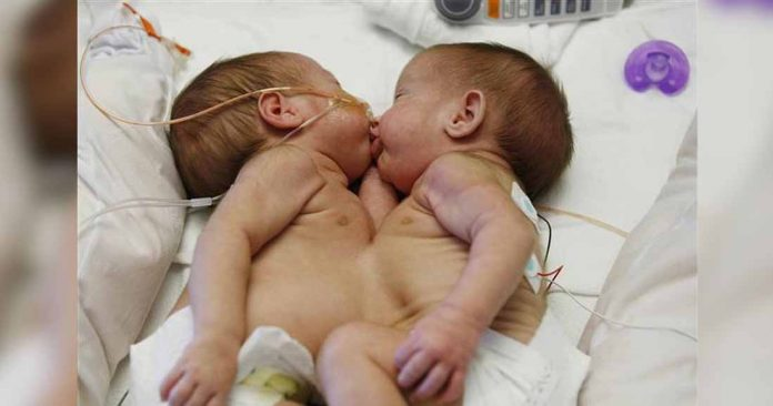Мама попросила рассоединить сиамских близнецов с вероятностью выжить всего 5%, но она хотела дать им эти 5%!